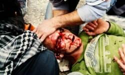 Ranny w głowę Nabi Saleh